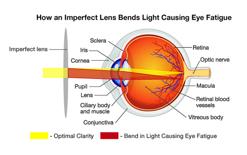 Eye strain diagram