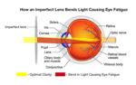 BrandX_Graphic_How-an-Imperfect-Lens-Bends-Light-Causing-Eye-Fatigue.jpg